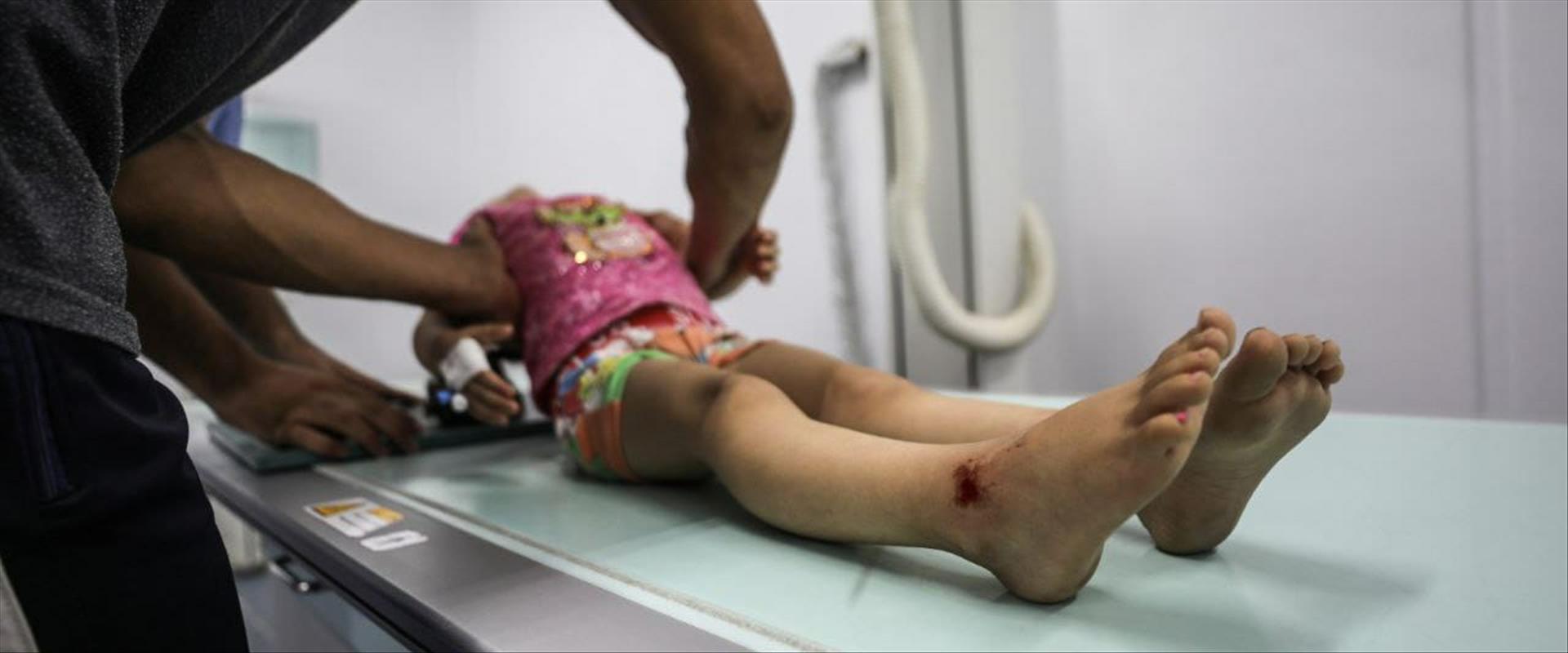 """ילדה עזתית שנפצעה בתקיפת צה""""ל"""